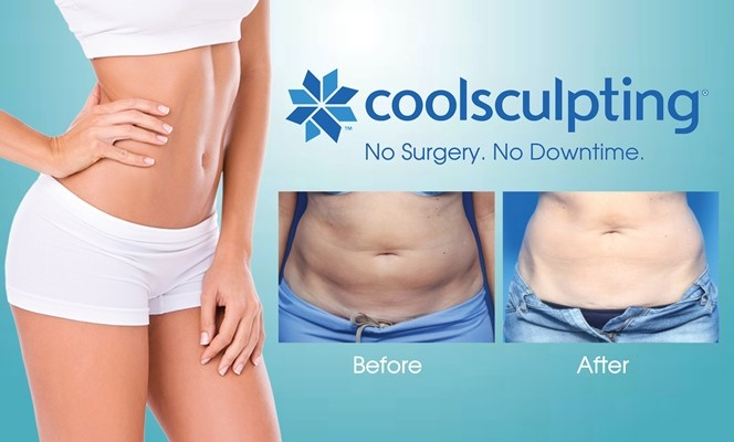Coolsculpting is a great option to remove lose fat